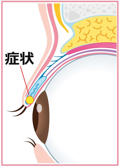 ものもらい めばちこ 西原眼科 結膜炎 緑内障 白内障 アレルギー性結膜炎・花粉症 眼精疲労・ドライアイ・スマホ老眼