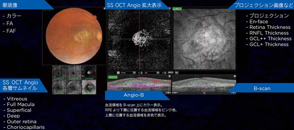 3次元眼底像撮影装置DRI OCT Tritonとは